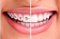 矫正的是牙齿,改变的是人生——矫正重要性科普-侯瑜琳